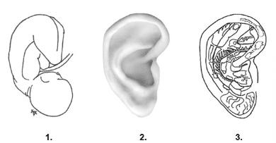 Øre-akupunktur